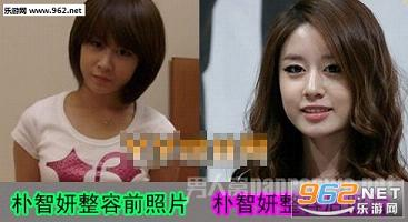 朴智妍整容了吗